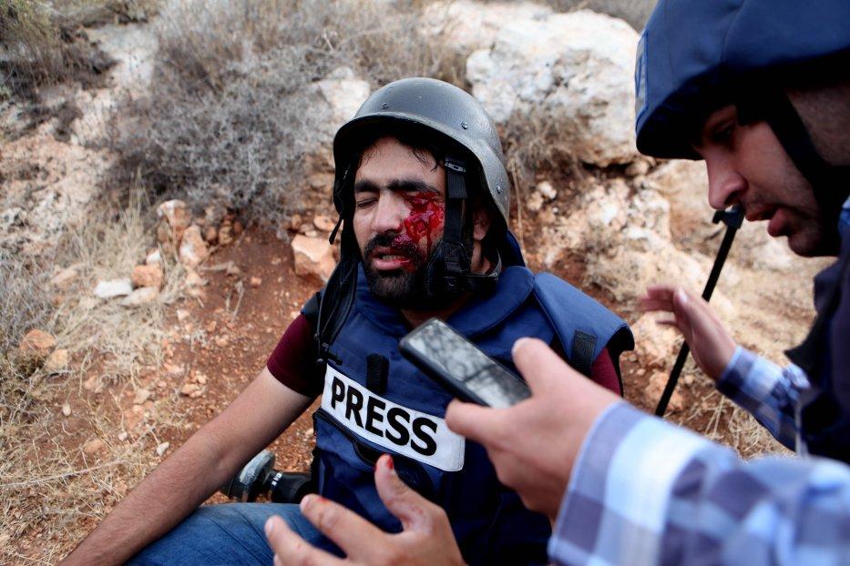 Uz pokrivanje lijevog oka iskazana solidarnost s palestinskim fotoreporterom