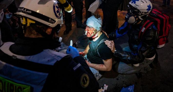 Počinje istraga u Francuskoj zbog napada policije na fotografa